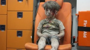 Syria Photographer Captures Image Of Dazed, Bloodied Boy